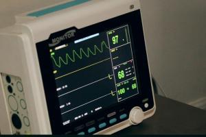 ECG monitor.